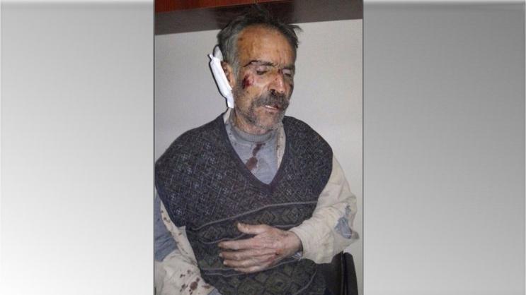 Tyrkisk minister forsvarer tortur mod kurder